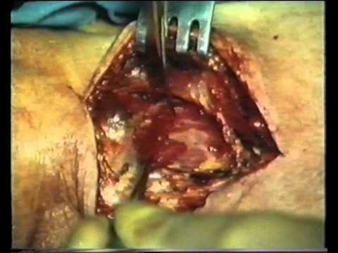 Пластика пищевода - plastic esophageal
