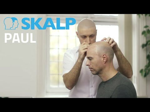 Scalp Micro Pigmentation by Skalp® Paul Connolly - Celebrity Fitness Trainer to the Stars (видео)