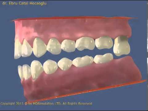 Çekilen dişlerin yerine karşısındaki dişlerin uzaması