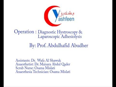 Diagnostic Hystroscopy & Laparoscopic Adhesiolysis-منظار رحمي تشخيصي & ازالة الالتصاقات بالمنظار