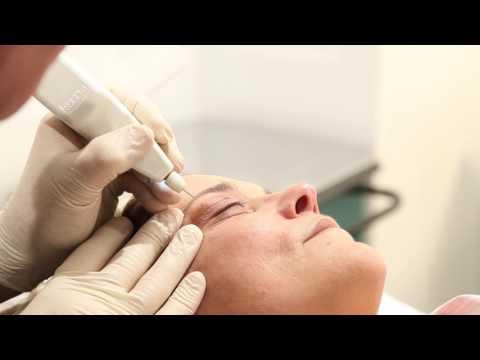 Trattamenti PLEXR - Urban Medical Beauty