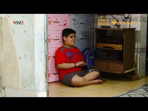 Biệt Tài Tí Hon 2 | Cậu bé Minh Chiết, đằng sau một đôi mắt là niềm đam mê và nghị lực phi thường - Thời lượng: 10 phút.