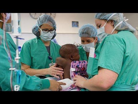 Κοριτσάκι γεννήθηκε με τέσσερα πόδια και δύο σπονδυλικές στήλες