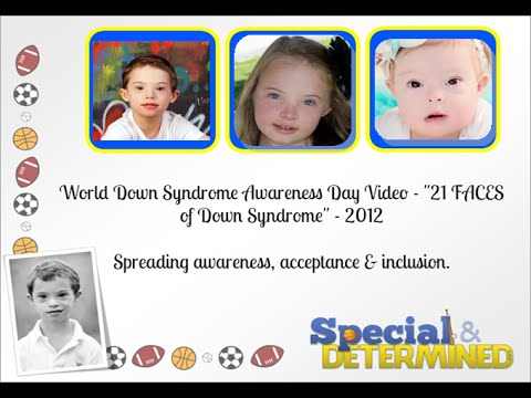 Watch video Down Syndrome 21 faces