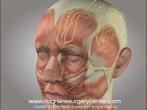 Migraine surgery video animation