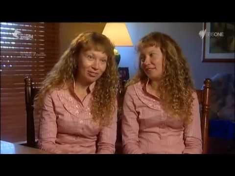 WATCH:   Identical Twin Women...In every way