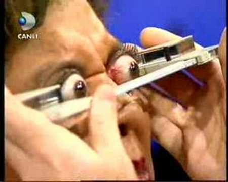 驚悚!女子可控制眼珠向外凸出12公厘!(0:26)