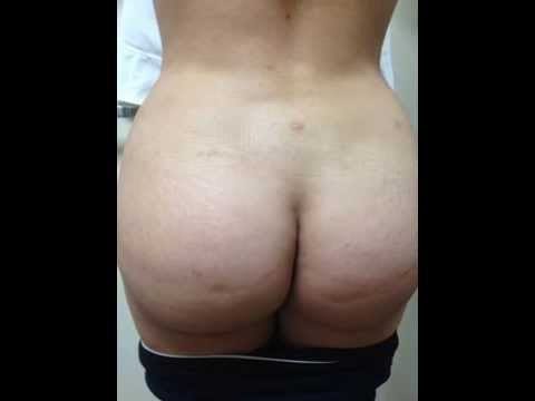 brazilian butt lift before and after pictures,fat transfer before and after pictures