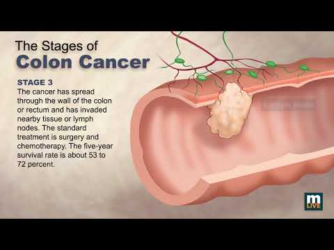 Stages of Colon Cancer