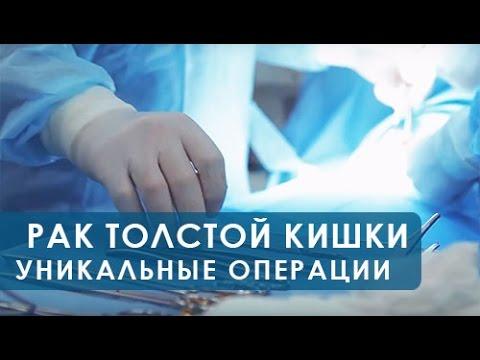 Рак толстой кишки, операция.Уникальные операции по удалению рака толстой кишки без рецидива.