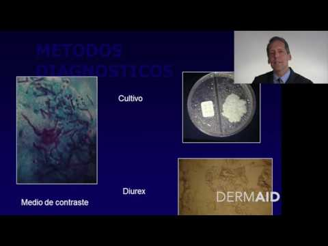Pitiriasis Versicolor en Espanol