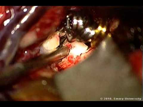 Cotton-Clipping Method Of Intraoperative Aneurysm Tear Ligation - Part 2