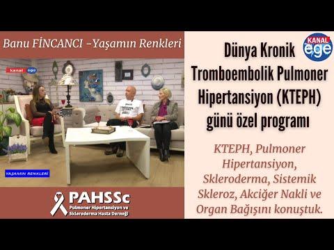 Kanal Ege Banu Fincancı Yaşamın Renkleri 21 11 2018 PAH ve SSC