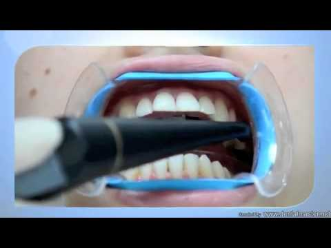 Natural + Teeth Whitening Dental Video – How it Works