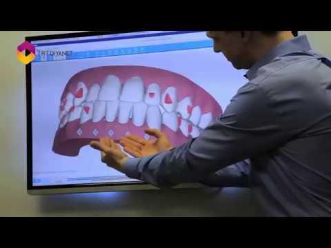Vtr Hangi Ortodontik Problemlerde Hekime Gidilmeli