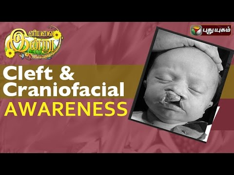 Cleft-Craniofacial-Awareness-Month-In-Iniyavai-Indru--02-07-2016-I-Puthuyugam-TV