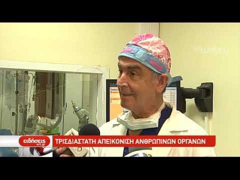 Πρωτοποριακή τεχνική σε επέμβαση αορτικής βαλβίδας στο νοσκομείο Παπαγεωργίου | 21/12/2018 | ΕΡΤ
