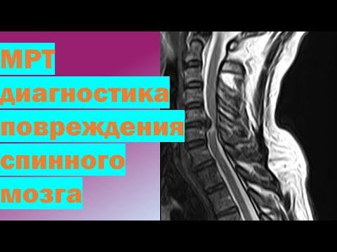 МРТ диагностика повреждения спинного мозга