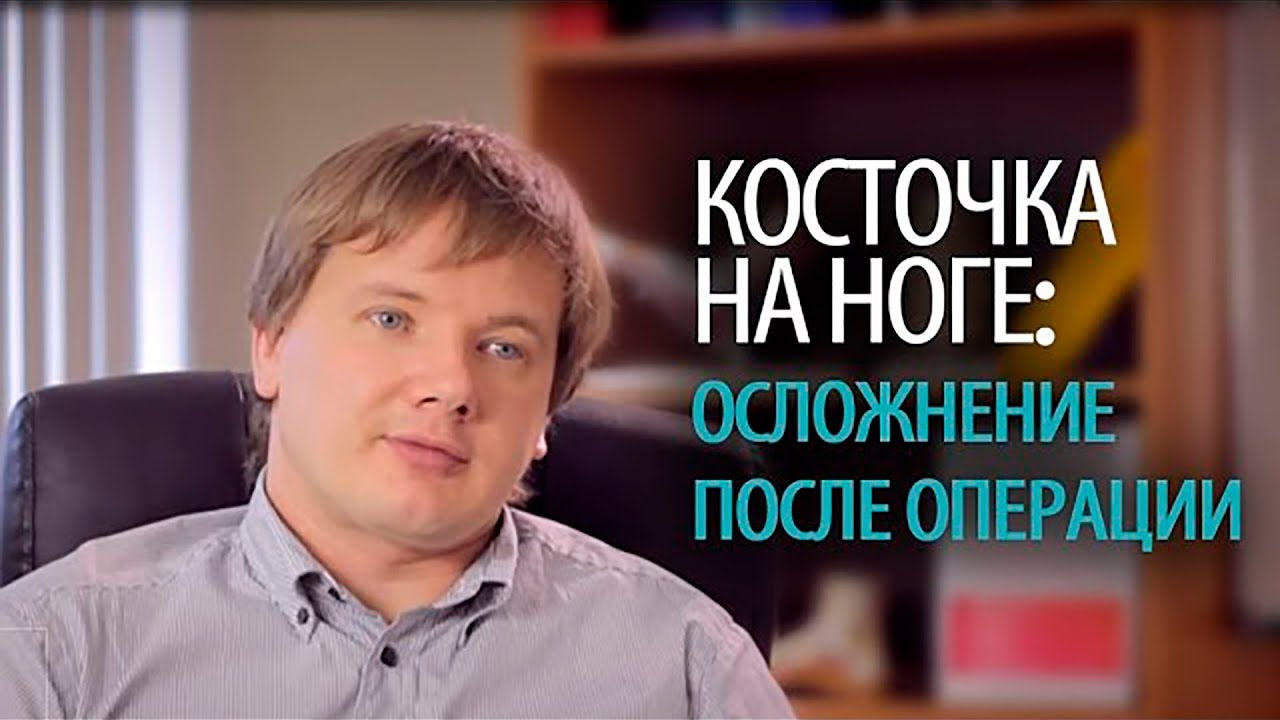 Частые осложнения после удаления косточки на ноге  (hallux valgus) - хирургия стопы Алексея Олейника