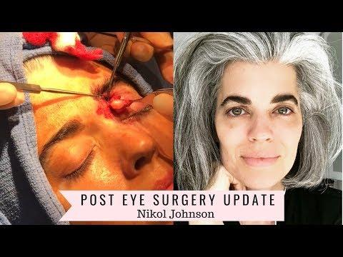 Post Surgery Update | Plastic Surgery | Nikol Johnson