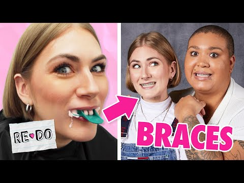Adults Get Braces For 48 Hrs • Re-Do