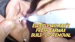 Elderly woman complains of slight hearing loss after using a q-tip. Ear wax build-up was seen covering the ear drum, thus causing the hearing loss.Removal of ear wax was done slowly and gently using lighted ear curette . Instant relief was noted  right after the extraction.Please give a thumbs up for this videoDon't forget to comment and subscribe.Click here to SUBSCRIBE:https://www.youtube.com/channel/UCAxplrfzotx7p03CHj9Nvbw
