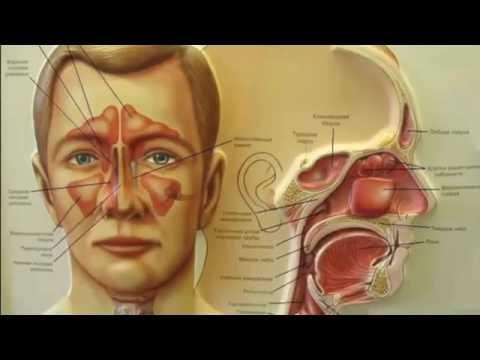 Джала-нети, промывание носа. Лечение гайморита и насморка.