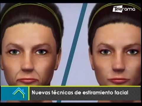 Estética al Día: Nuevas técnicas de estiramiento facial