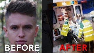 Video Joe Weller Before And After The KSI Fight MP3, 3GP, MP4, WEBM, AVI, FLV Juni 2018