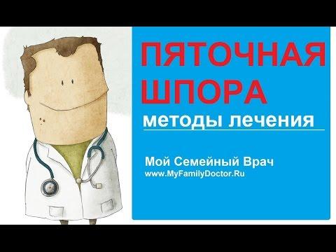 Пяточная шпора: современные методы лечения