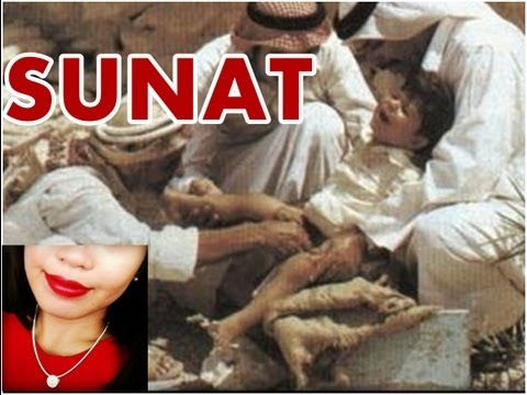 ⭐️ Circumcision ⭐️ Untung Rugi Sunat ⭐️ Indonesian Education Channel About Love, Sex And Health ⭐️