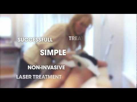 Epilight leg vein remover
