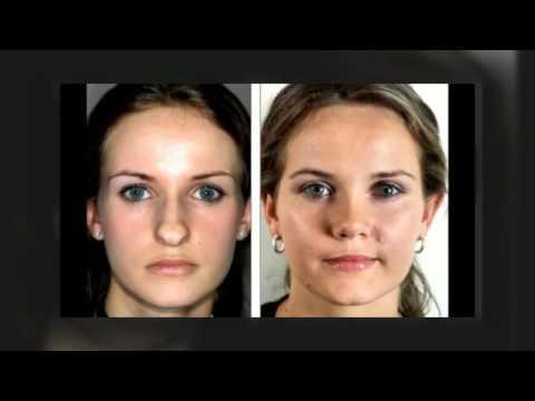 (816) 399-3288 Best Rhinoplasty Surgeon Kansas City MO | Top Nose Job Surgeons Missouri