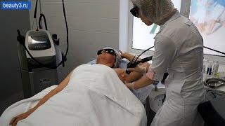 Лазерная эпиляция подмышечных впадин в клинике Реформа