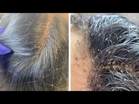 Hair Clinic Remove Hundreds Of Lice From Client's Head