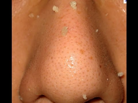 how to unclog big pores