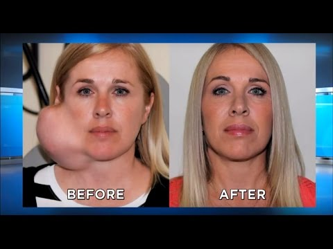 Parotidectomy Surgery UPDATE: Large Facial Tumor Removal, Parotid Gland: The Doctors TV Show