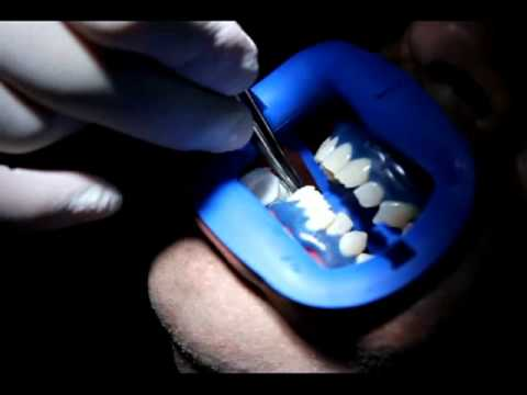 How is Laser Teeth Whitening Done – Just Smile Dental Hygienists in Toronto