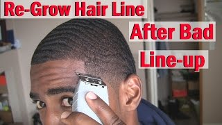 Video How to ReGrow your Hairline Naturally: After Bad line up/Haircut! MP3, 3GP, MP4, WEBM, AVI, FLV Agustus 2018