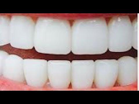العرب اليوم - شاهد| وصفة لتبييض الأسنان في دقيقتين وإزالة الإصفرار