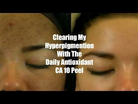 Clearing My Hyperpigmention With My Daily Antioxidant CA10 Peel