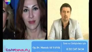 Op Dr Mustafa Ali Yanık Yüz Germe Estetiğini anlatıyor