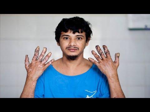 孟加拉罕見病患者「樹人」經過16次手術終於割掉11公斤的疣,他現在的手長這樣…