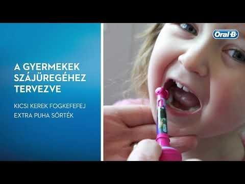 Oral-B D100 gyerek elektromos fogkefe, Frozen + utazótok