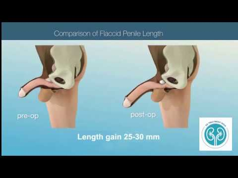 Penile Lengthening Surgery Video, Phalloplasty Surgery,