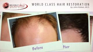 Hair Transplant Surgery Before and After Natural Results in Beverly Hills