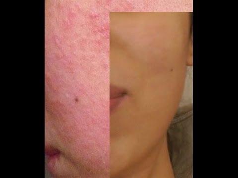 Masque Anti Acné efficace - traitement acné