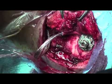 Left Ventricular Aneurysm Resection and LVAD Implantation Through Median Sternotomy