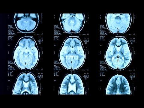 Seizures vs. Epilepsy   Epilepsy