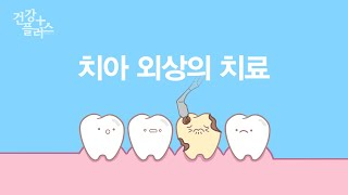 치아 외상의 치료